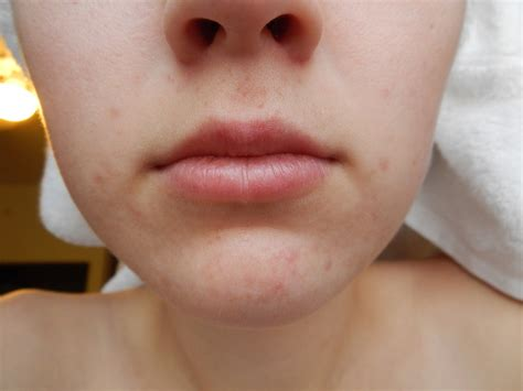 acne around mouth area picture 1