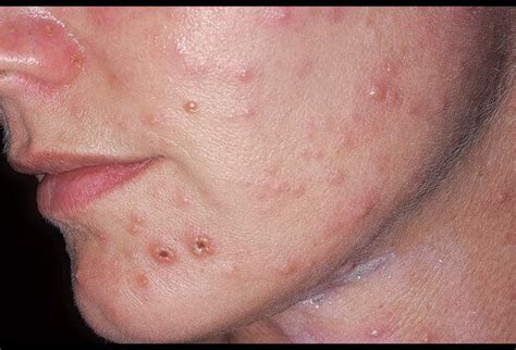 skin diseases shingles picture 1