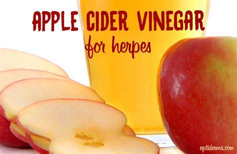 apple cider vinegar for herpes picture 1