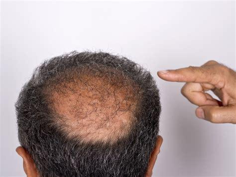 aggressive prostate cancer picture 2