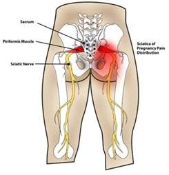 severe pain in left gluteus maximus torn tear picture 6
