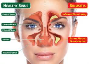 herbal product used to reduce mucus from the sinus picture 6