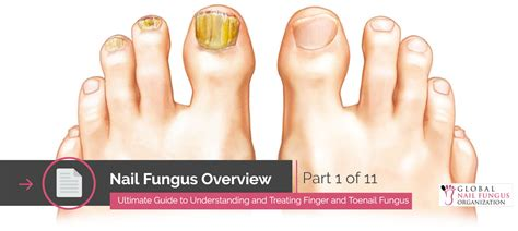 pictures of nail fungus picture 1