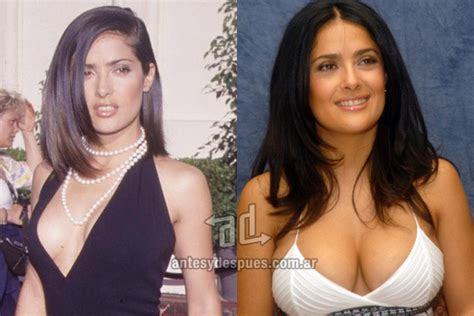 affordable breast enhancement picture 17