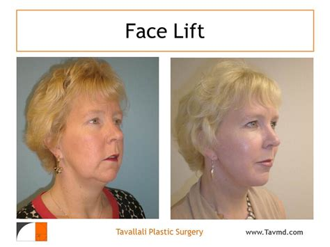 weight loss surgery financing picture 1