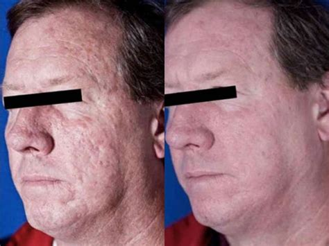 co2 laser treatment for acne scar picture 9