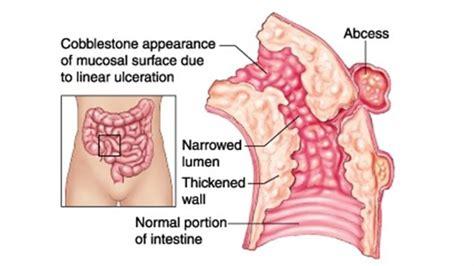 colon cancer research picture 6