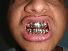 gold teeth grills picture 1