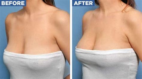 after mastopexy breast is uneven picture 3