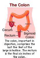 about colon problems for men picture 11