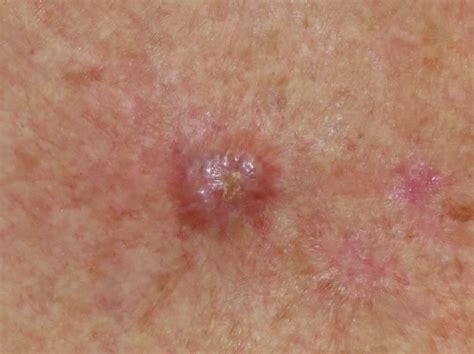 basal skin cancer symptoms picture 2