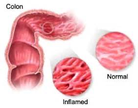 types of intestinal colitis picture 3