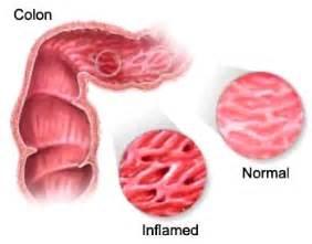 bowel ischemia symptoms picture 9