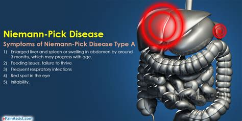 what are some symptoms of liver disease picture 7