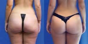 adonis skin care for cellulite as seen on picture 7