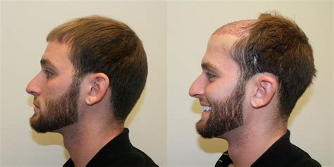 boslely hair restoration picture 5