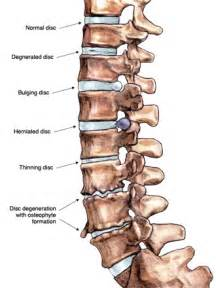 degenrative joint diease in the spine picture 15