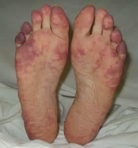 low blood presure purple feet picture 3