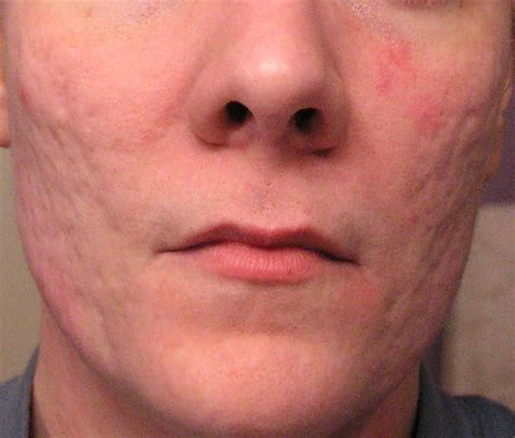 what causes acne scaring picture 2