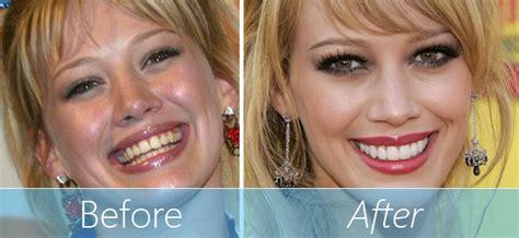 cost of teeth veneers picture 2