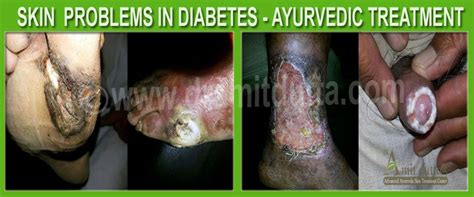 diabetes and skin diseases picture 5