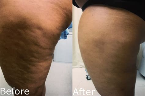 cellulite therapy accent connecticut picture 14