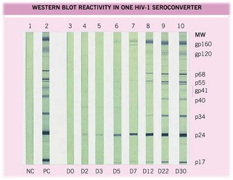 western blot test for herpes picture 6