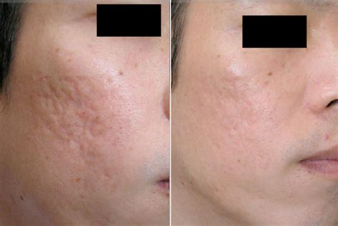 derma rolling before and after pics picture 4