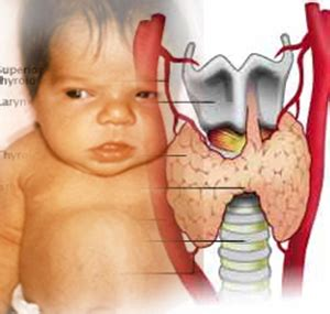 congenital hypothyroidism picture 13