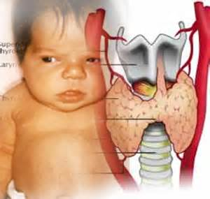 congenital hypothyroidism picture 1