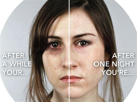 sleep depravation study picture 10