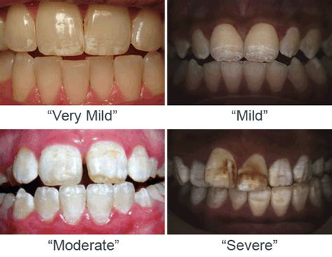 forming of enamel in permanent teeth picture 3