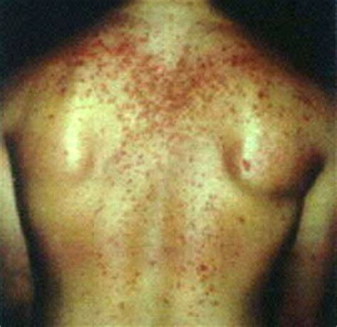 steroids side effects in skin picture 3