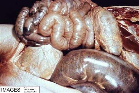 severe mega colon picture 2