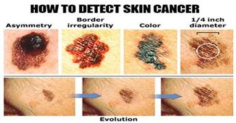 skin cancer signals picture 5