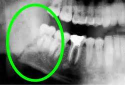 fractured jaw caused by teeth pulling picture 7