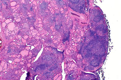 autoimmune thyroiditis picture 5