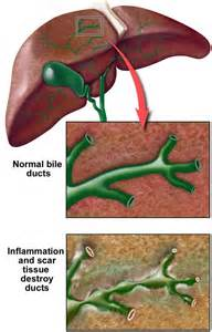 liver cirrhosis and pbc picture 11
