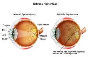 retinitis pigmentosa treatment picture 10