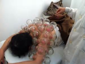 chinese herbal poultice picture 9