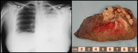 yeast infection lung picture 15