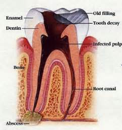 how lobg does tooth nerve inflammation take to picture 1