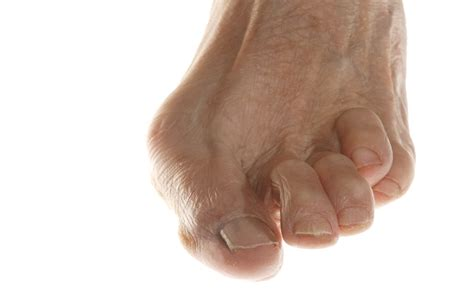 what is the best treatment for plantar warts picture 6