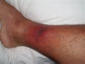 infection mrsa picture 10