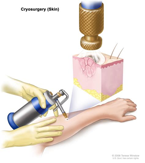 skin surgery cryosurgery picture 6