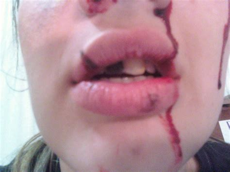 Busted lips picture 19