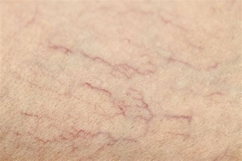 small red spider veins under skin of monis picture 14