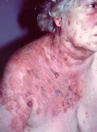 herpes and dormant picture 2