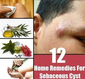 home remedy for pilar cyst picture 6