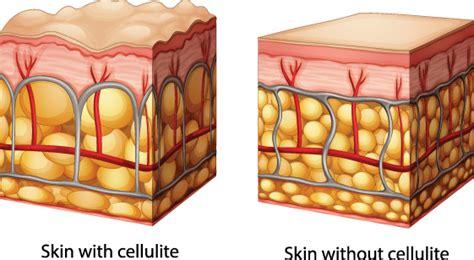 fat cellulite picture 11